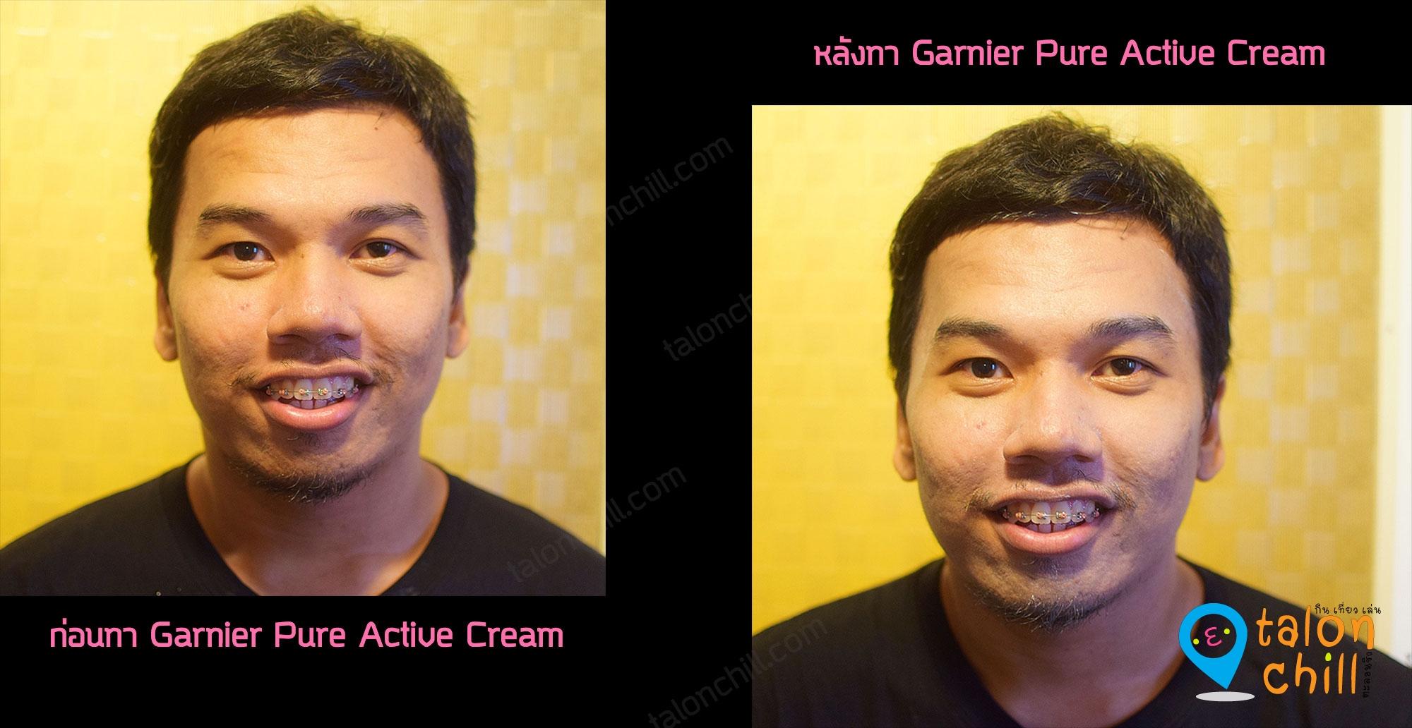 [แกะกล่อง] Set Garnier Pure Active Foam และ Garnier Pure Active Cream คู่หูผิวใสไกลสิวใน 7 วัน