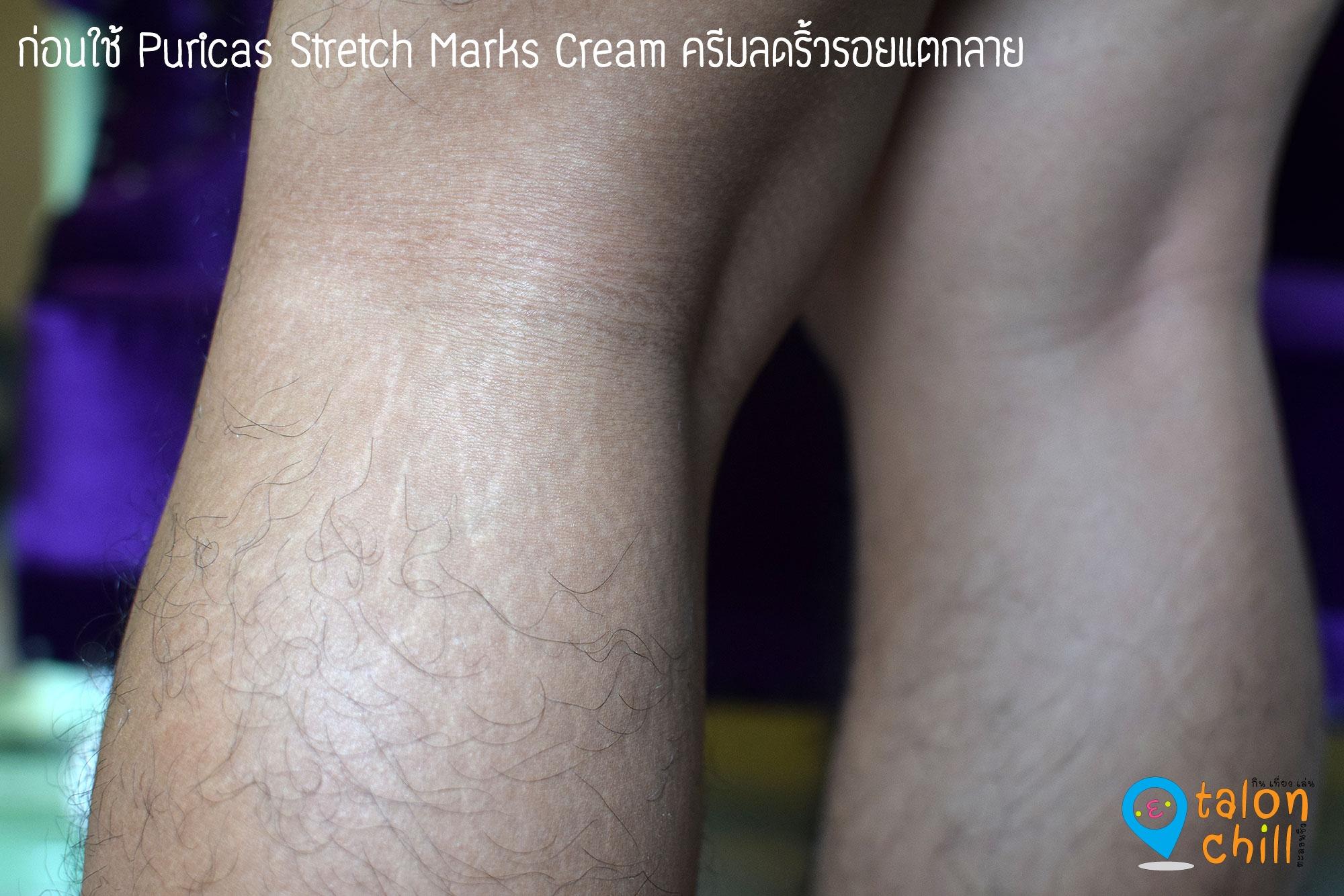 puricas-stretch-marks-cream_1
